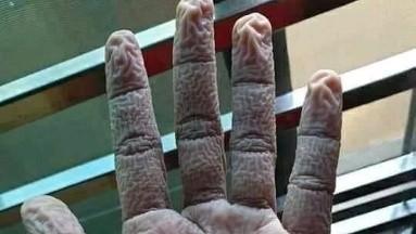 Así quedan las manos de un doctor tras pasar 10 horas con los guantes puestos